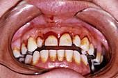 Dental plaque and gum disease