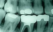 Fillings in a child's milk teeth
