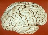 Brain in Sturge-Weber syndrome