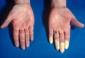 Raynaud's phenomenon in the fingers