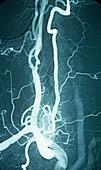 Carotid atherosclerosis,X-ray