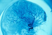 Brain tumour blood supply,X-ray