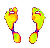 Feet on thermochromic film