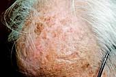 Solar keratosis of the scalp