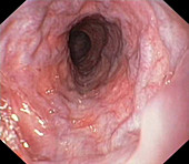 Oesophageal varices,endoscope view