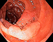 Intestinal polyp,endoscope view