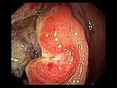 Rectal cancer,endoscope view