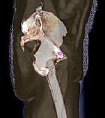 Metastatic prostate cancer,3D CT scan