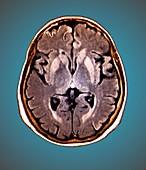 Brain in Creutzfeldt-Jakob disease,MRI