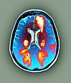 Brain in toxic encephalopathy,MRI