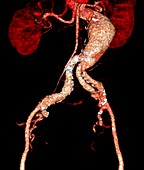 Arterial aneurysms in Marfan syndrome,CT
