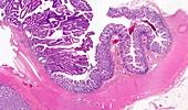 Large bowel tumour,light micrograph