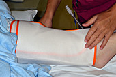Surgical pneumatic compression sleeve