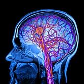 Stroke,mri brain scan,artwork