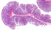 Colon polyp,light micrograph