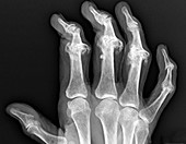 Psoriatic arthritis of the hand,X-ray