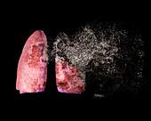 Lung disease,conceptual illustration