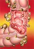 Diverticular disease,illustration
