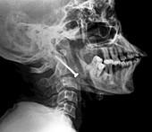 Pinned broken neck,X-ray