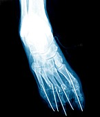 Bunion after surgery,X-ray