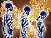 Osteoporosis treatment with antibodies