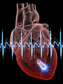 Heart with leadless cardiac pacemaker