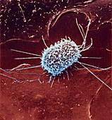 Dividing cancer cell,SEM