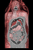 Trapped abdominal gas,CT scan