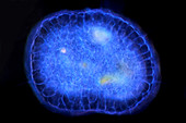 Actinosphaerium protozoan,micrograph