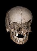 Neolithic Child's Skull
