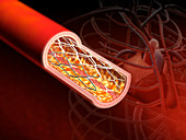 Angioplasty,illustration