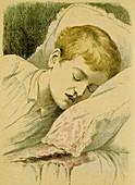 Boy with Haemophilia
