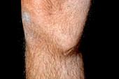 Torn knee ligament