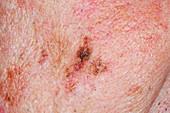 Precancerous skin lesion