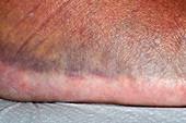 Bruising after an injury