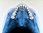 Dental arch in thumb sucking,X-ray