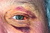 Bruised face following fall