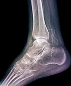 Calcified ankle arteries,X-ray