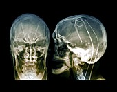 Parkinson's brain pacemaker,X-ray