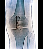 Pinned kneecap fracture,X-ray
