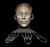 Electroencephalography,composite image