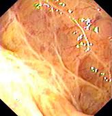 Mucosal scars in ulcerative colitis