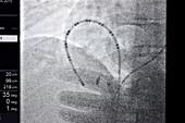 Cardiac ablation surgery,heart X-ray