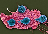 T lymphocytes and cancer cell,SEM