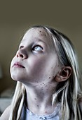 Girl with chickenpox