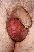 Inflamed testicles