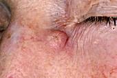 Keratoacanthoma skin cancer