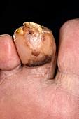 Infected toe injury in diabetic
