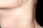 Enlarged lymph nodes
