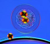 Shelled amoeba,light micrograph